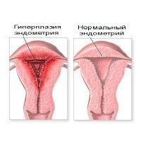 Залозиста гіперплазія ендометрію