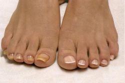 Жовті нігті на ногах