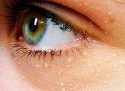 Жировик в куточку ока - як позбутися?