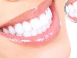 Зубний камінь - лікування