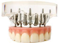 Зубні імплантати