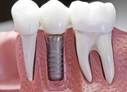 Зубні імпланти - «за» і «проти»